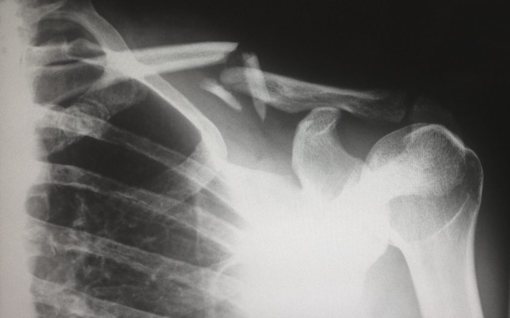 Total Shoulder Replacement Malaysia